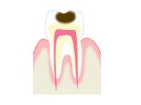 C2(象牙質う蝕)